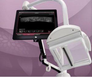 Ultrassonografia 3D